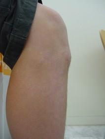 Resultado de imagen para enfermedad de osgood schlatter