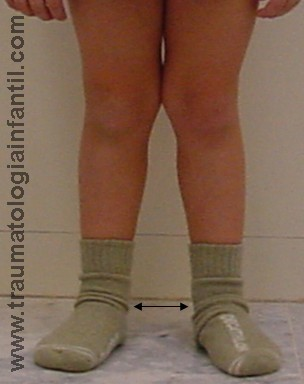 Rodilla Valga Traumatología Infantil